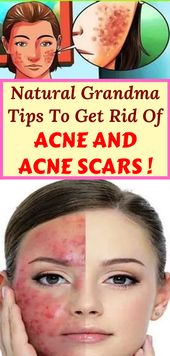 Natural Grandma Tips To Get Rid Of Acne And Acne S…