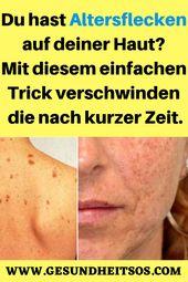 Du hast Altersflecken auf deiner Haut? Mit diesem einfachen Trick verschwinden d…