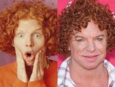 Carrot Top Before And After Plastic Surgery – #carrot #plastic #surgery #Top – C…