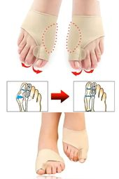 Bunion Corrector Brace For Men & Women