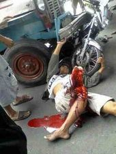Motorcycle Accidents Pictures Gory : motorcycle, accidents, pictures, Motorcycle, Bicycle, Accidents, (GRAPHIC)