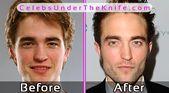 Robert Pattinson Vorher Nachher Fotos Plastische Chirurgie … – #chirurgie #Fot…