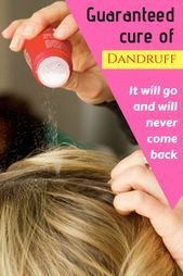 2 hair masks that may take away dandruff utterly out of your scalp #removedandruf…,  #Comple…