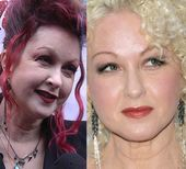 #pictures #plastic #surgery #lauper #before #cyndi