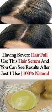 Having extreme hair fall. Use this hair serum and you may see outcomes after simply 1 use