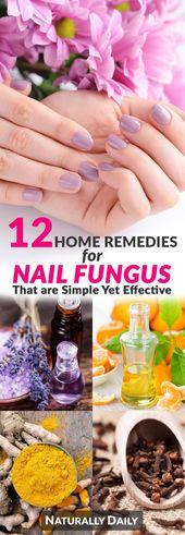 12 Home Remedies für Nagelpilz, die einfach, aber effektiv sind – #aber #die #e… – https://nagel.ebookindir.co