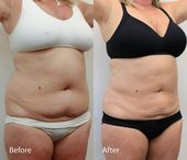 Dr. Darm, LipoLift Before and After Pictures (Abs Flanks) – MW Page 6 – #Abs #Da…