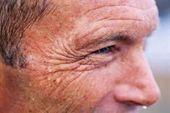 """Erfahren Sie mehr über """"Feuchtigkeitscreme für trockene Haut"""". Schauen Sie sich unsere w – Dehnungsstreifen"""