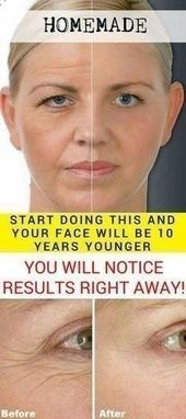 Start Doing This And Your Face Will Be 10 Years Younger! (You Will Notice Result…