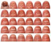 Nagelpilzbehandlung Vicks Vapor Rub und Listerine! #NailFungusVicks – #Listerine… – https:/… – Nagelpilz Hausmittel