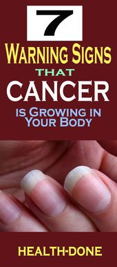 Warning Indicators That Most cancers Is Rising In Your Physique!