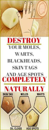 Destroy Your Moles, Warts, Blackheads, Pores and skin Tags And Age Spots Fully Naturally