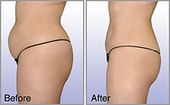 """Abdominoplasty or """"tummy tuck"""" is a cosmetic surgery procedure used to make the …"""