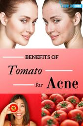 Benefits of Tomato for Acne Treatment