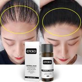 efero Highly effective Hair Progress Serum Stop Hair Loss Important Oil Longer Thicker Stop Baldness Merchandise Skilled Hair Develop efero Highly effective Hair Progress Serum Stop Hair Loss Important Oil Longer Thicker Stop Baldness Merchandise Skilled Hair Develop