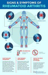 Rheumatoid Arthritis: Symptoms, Causes and Natural Support Strategies 1