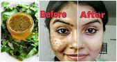 Mit diesem erstaunlichen Kräuterheilmittel werden Sie in nur 4 Tagen alle dunklen Flecken und Narben los – Skin remedies