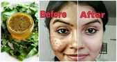 Neem Oil & Bee Pollen Skin Cream Rezept – DIY Skin Care + Natural Beauty Recipes