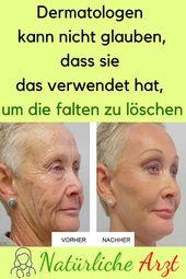 Dermatologen können nicht glauben, dass sie damit die Falten entfernt hat …