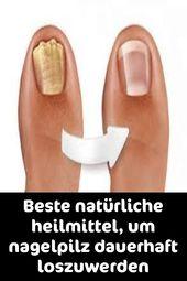 Beste natürliche heilmittel, um nagelpilz dauerhaft loszuwerden – Nail Fungus cure