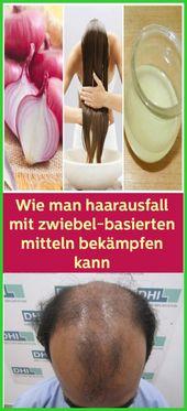 Wie Man Haarausfall Mit Zwiebel Basierten Mitteln Bekampfen Kann Naturliche Haarausfall Naturliche Gesundheit Haare