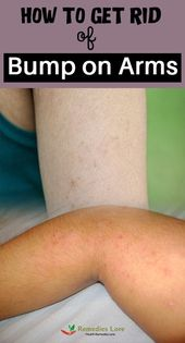 How To Get Rid Of Those Annoying Arm Bumps – Kerat…