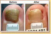 Skin Whitening Bleach  #WhiteningCream – Whitening Cream