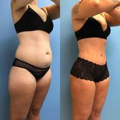 Stomach liposuction before and after 13