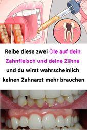 Reibe diese zwei Öle auf dein Zahnfleisch und deine Zähne und du wirst wahrsch…