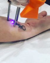 – Tattoo Removal with Cutera Laser using Pico Technology – To schedule a free consult visit our website meridiancosmetic.com or call #3056951506 ! . ….