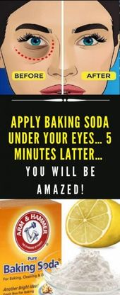 Apply Baking Soda Under Your Eyes… 5 Minutes Lat…