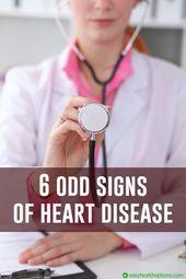 6 odd signs of heart disease (slideshow) 1