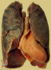 صور اضرار التدخين اضرار التدخين بالصور صور حول التدخين مضار التدخين أضرار التدخين صور ممنوع التدخين Meat Beef Food