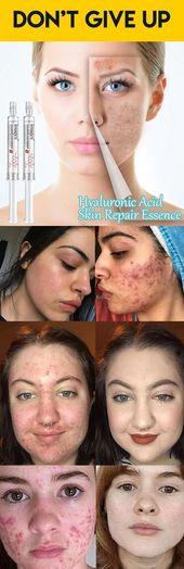 Hyaluronic acid skin repair essence (2pcs)