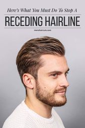 Receding 🌱 can you hairline a reverse The Only