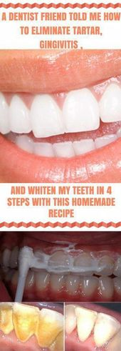 A Friend Dentist Taught Me How To Remove Tartar And Whiten Teeth In 4 Steps #Nat…