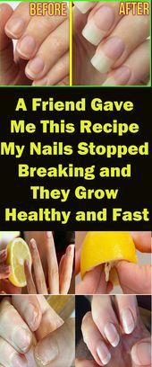 Ein Freund gab mir dieses Rezept – meine Nägel hörten auf zu brechen und wurden gesund   – Beauty