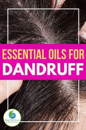 Uncover the perfect important oils for dandruff and itchy scalp plus a diy mix recipe you should utilize to…