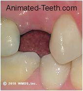 Tooth Filling Aftercare Smiles Nambour Tooth Filling Dental Fillings Foods To Avoid