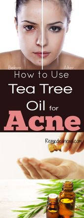 How to Use Tea Tree Oil for Acne : 11 Powerful Tea Tree Oil Recipes