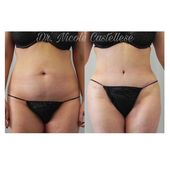 Before and after Tummy Tuck with liposuction of the hips and thighs. Check out t…
