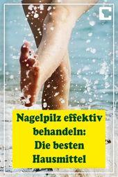 Nagelpilz effektiv behandeln: Die besten Hausmittel – #behandeln #besten #Die #e… – Nagelbehandlung