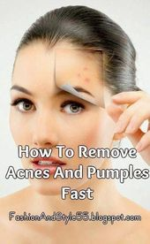 Every day I Stay Happier, Just because Of This Treatment I Burn The Warts On My Pores and skin Devoid of Leaving…