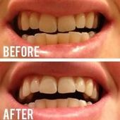 Willing Teeth Whitening Products Enamels #dentistf…