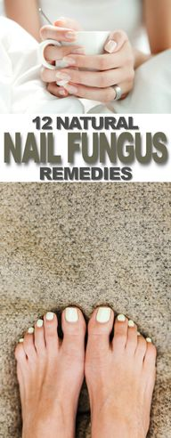 12 Natural Nail Fungus Remedies