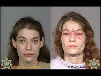 meth facial damage