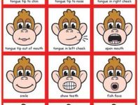 Oral Motor Difficulties 27