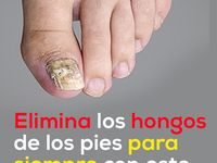 Hongos en uñas