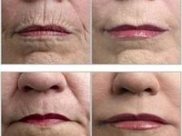Looking for the best natural wrinkle remedies or methods.