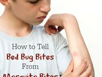 7 best images about bed bug bites on pinterest for How long mattress last